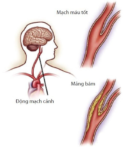 Homo BQ và xơ vữa động mạch